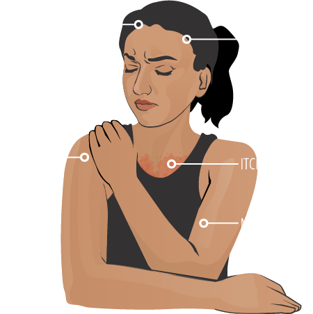 headache, fever, painful or red eyes, joint pain, itching/rash, muscle pain